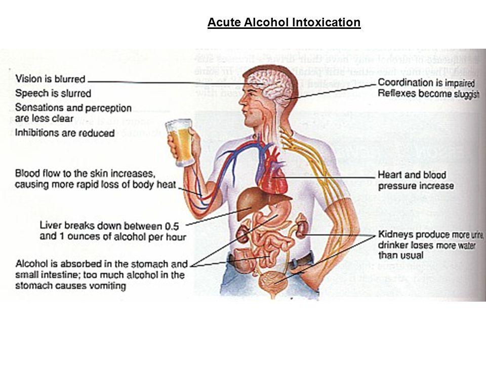 Acute Alcohol Intoxication