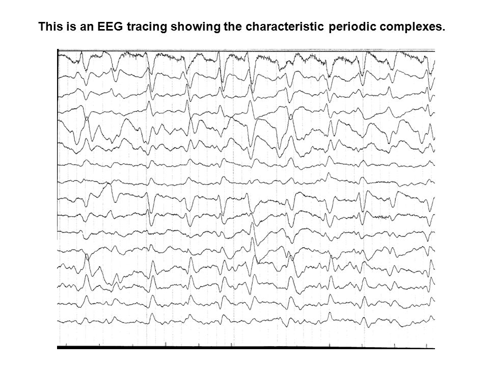 This is an EEG tracing showing the characteristic periodic complexes.