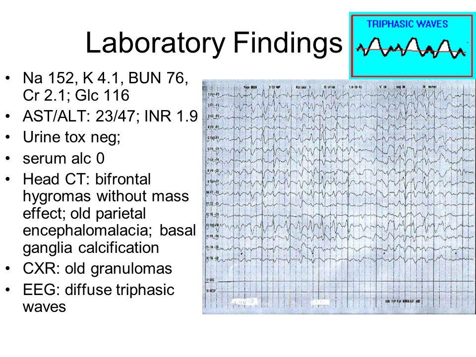 Laboratory Findings Na 152, K 4.1, BUN 76, Cr 2.1; Glc 116 AST/ALT: 23/47; INR 1.9 Urine tox neg; serum alc 0 Head CT: bifrontal hygromas without mass