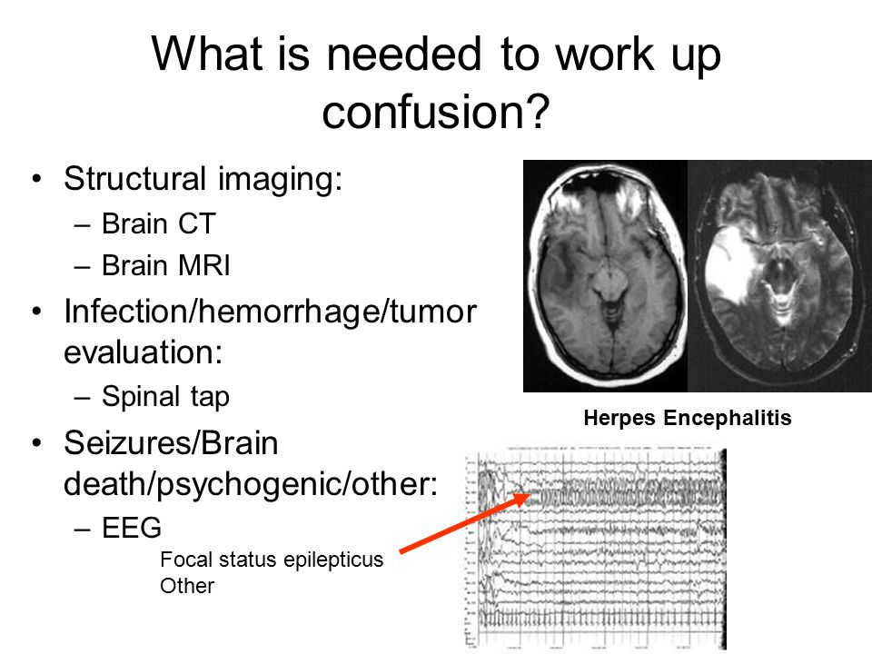 What is needed to work up confusion? Structural imaging: –Brain CT –Brain MRI Infection/hemorrhage/tumor evaluation: –Spinal tap Seizures/Brain death/