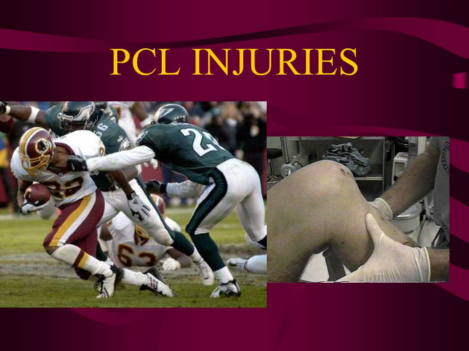 MCL INJURIES Treatment of Grade 3 (full tears) Isolated = nonsurgical management Combined = surgery consistent with associated injuries Natural Hx = lack of long-term degenerative changes seen with ACL, meniscus