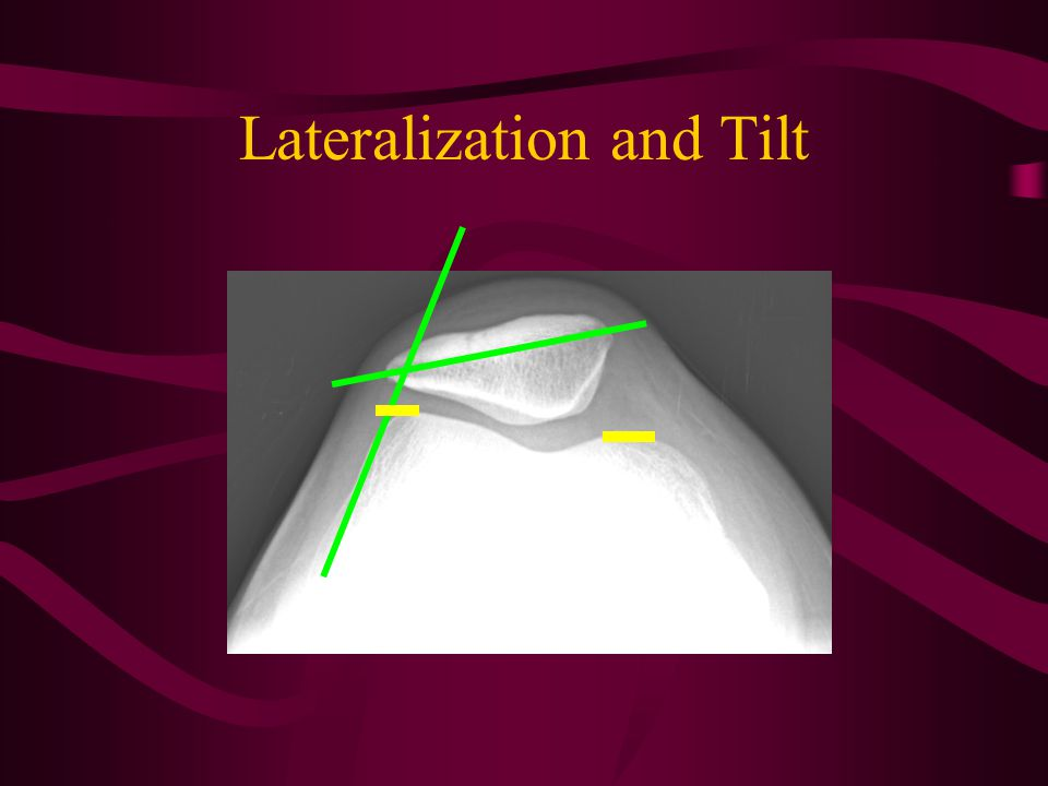 KNEE- TANGENTIAL XRAYS Assess patellofemoral joint Patellar tilt Lateralization Depth of trochlear groove