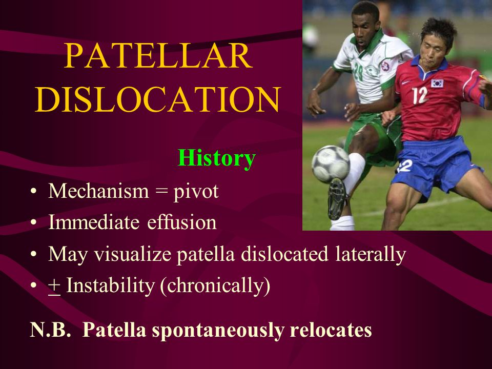 PATELLAR INSTABILITY Acute patellar dislocation Acute patellar subluxation Patellar tracking dysfunction