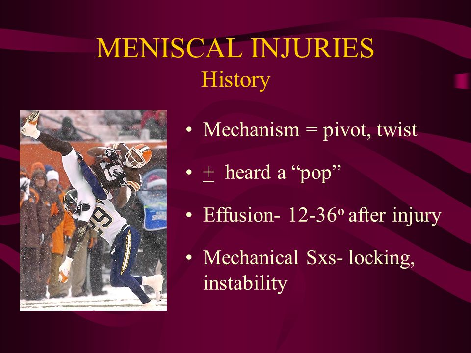 Types of Meniscus Tears Longitudinal Horizontal Oblique Radial