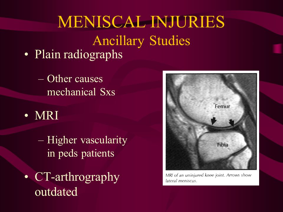 MENISCAL INJURIES Physical Exam Joint line tenderness –IR/ER Decreased ROM McMurray's test Apley's compression test