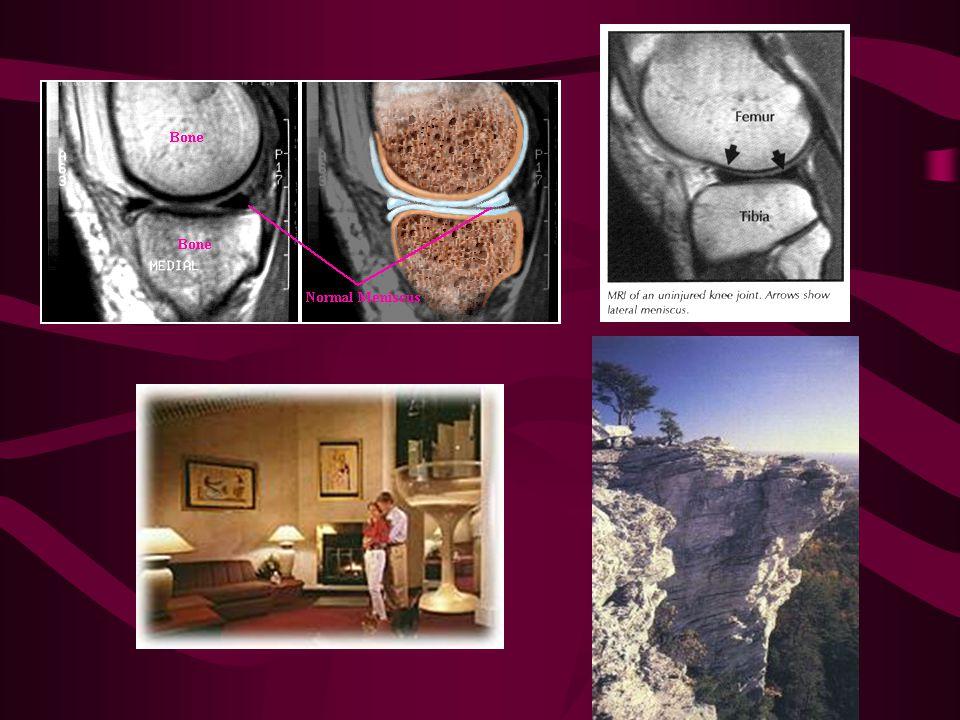 Meniscus MRI