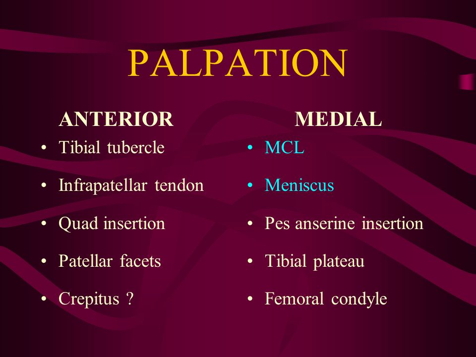 MCL INJURIES PHYSICAL EXAM Tender to palpation along MCL Pain + instability with valgus stress –30 o flexion = MCL –90 o flexion = associated ACL Pain with Apley's distraction test COMPARE SIDES