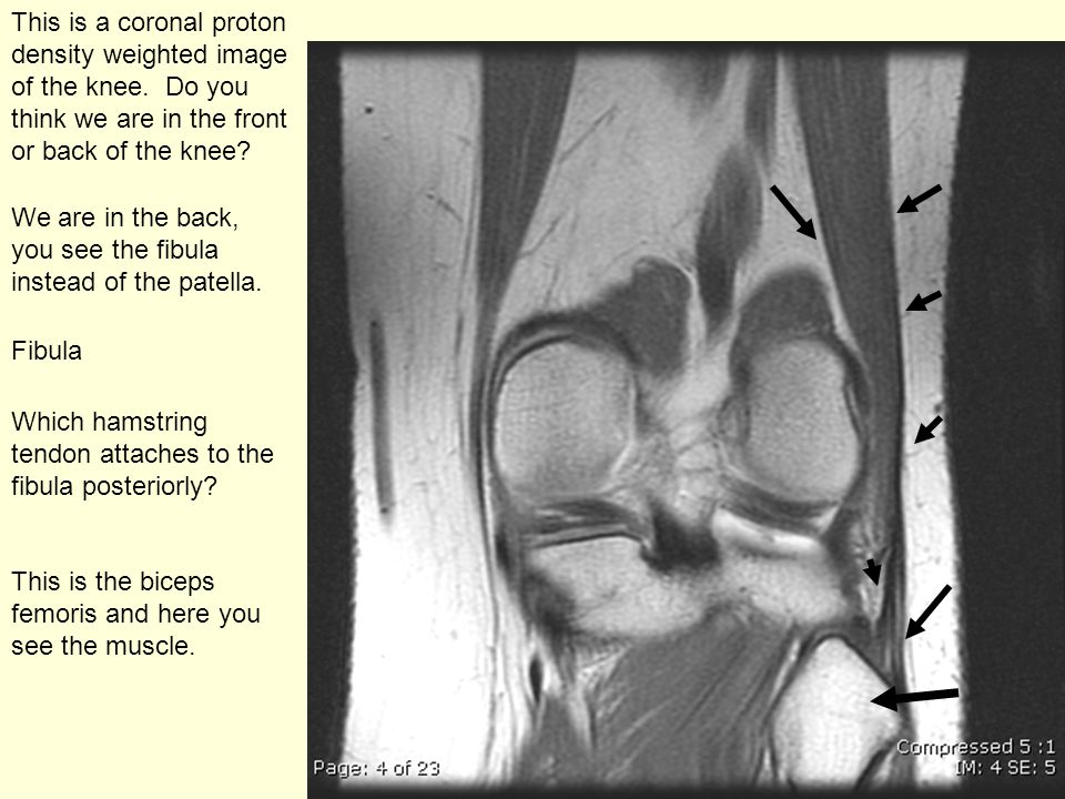This is a coronal proton density weighted image of the knee.