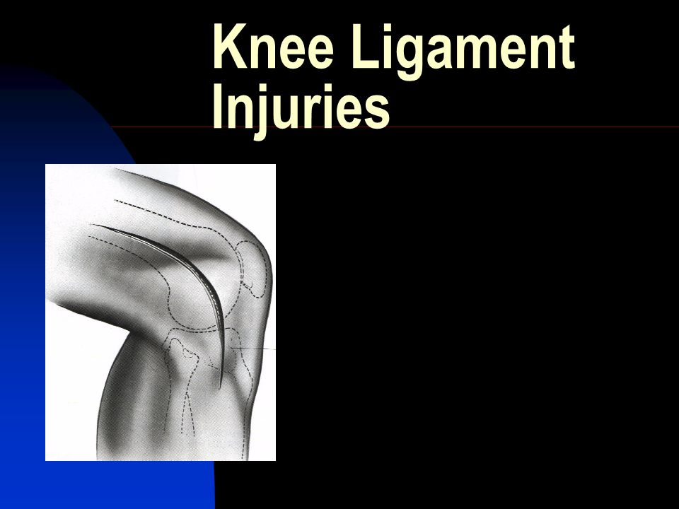 Overview Ligament Anatomy Biomechanics Ligament Specific  Epidemiology  Classification  Clinical exam  Imaging  Tx