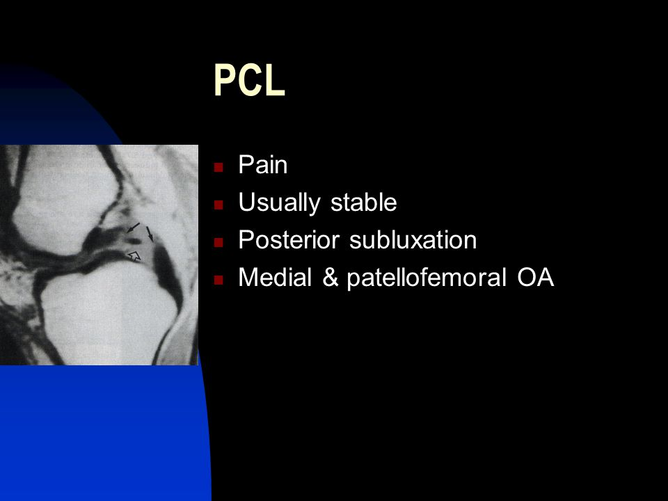PCL Pain Usually stable Posterior subluxation Medial & patellofemoral OA