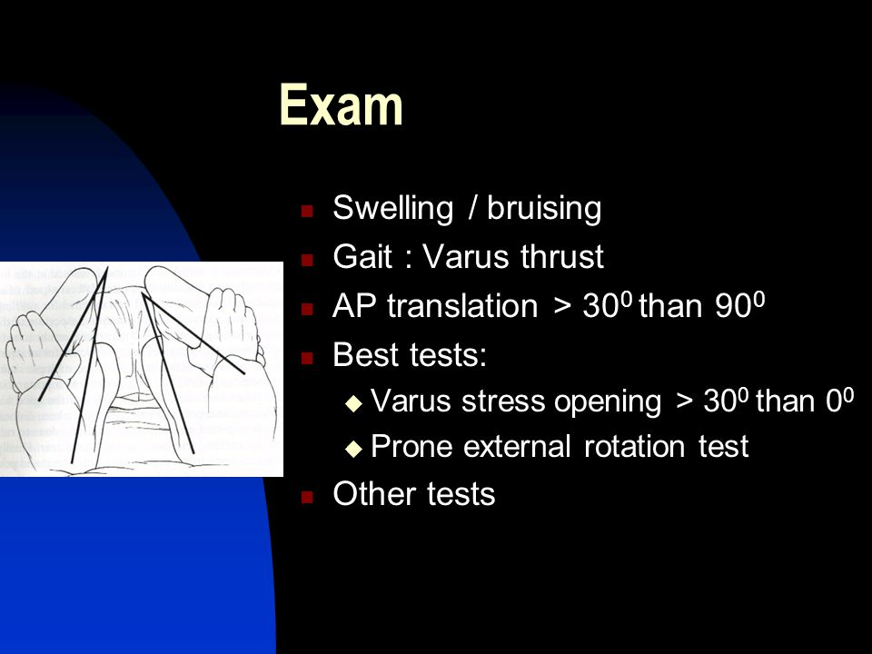 Exam Swelling / bruising Gait : Varus thrust AP translation > 30 0 than 90 0 Best tests:  Varus stress opening > 30 0 than 0 0  Prone external rotation test Other tests