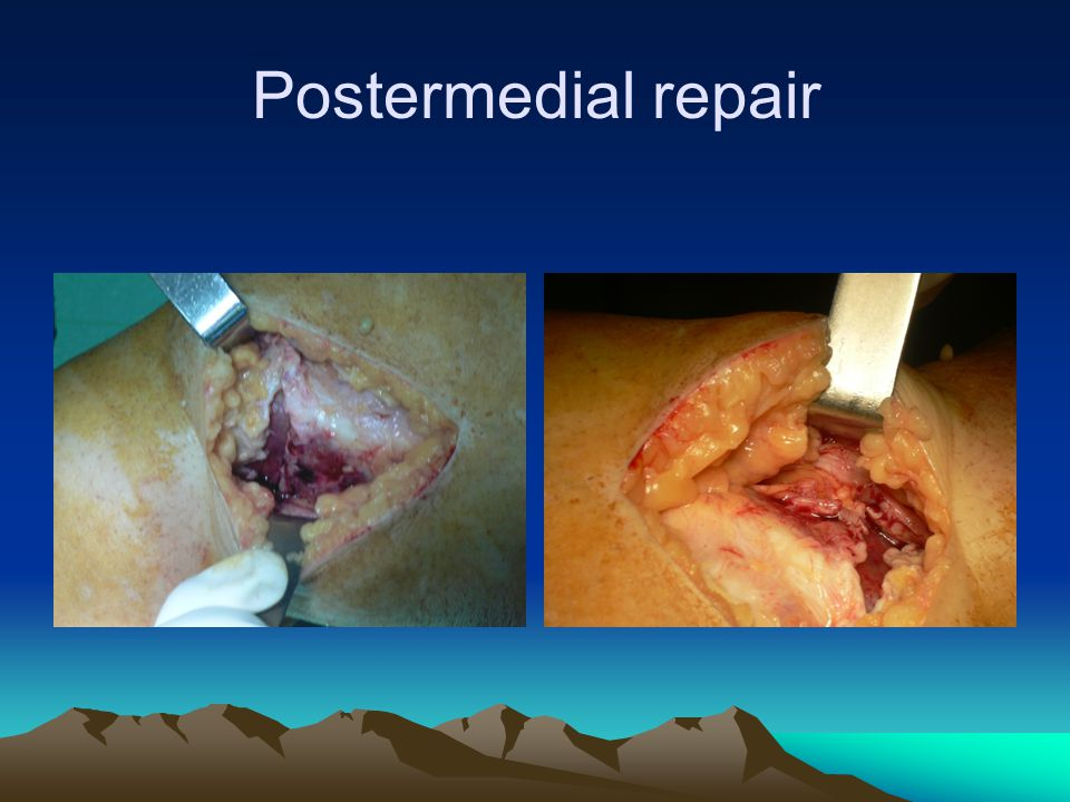 Critical concepts Management & treatment of compartment syndrome Simple primary repair of injured soft tissue Avoid additional incisions Delay definitive ligament reconstructions In vascular repair give enough time