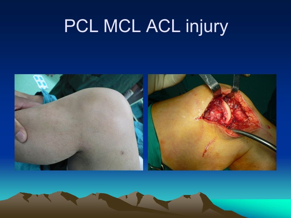 PCL MCL ACL injury
