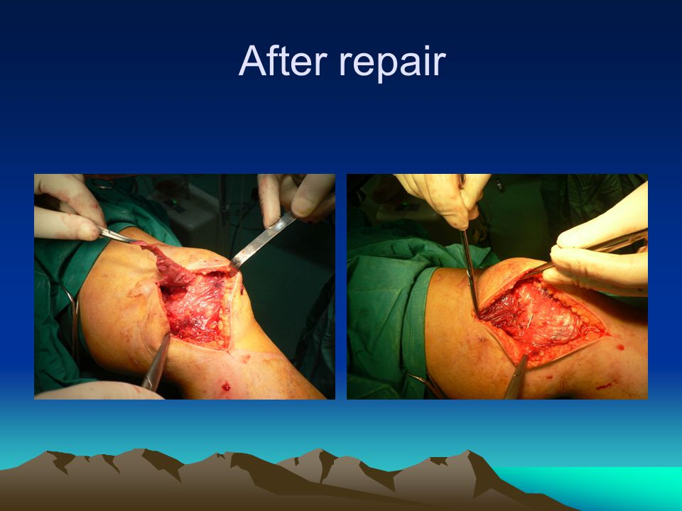 Final outcome: Stable,pain free, good ROM Stiff knee Unstable & pain free Unstable & painful