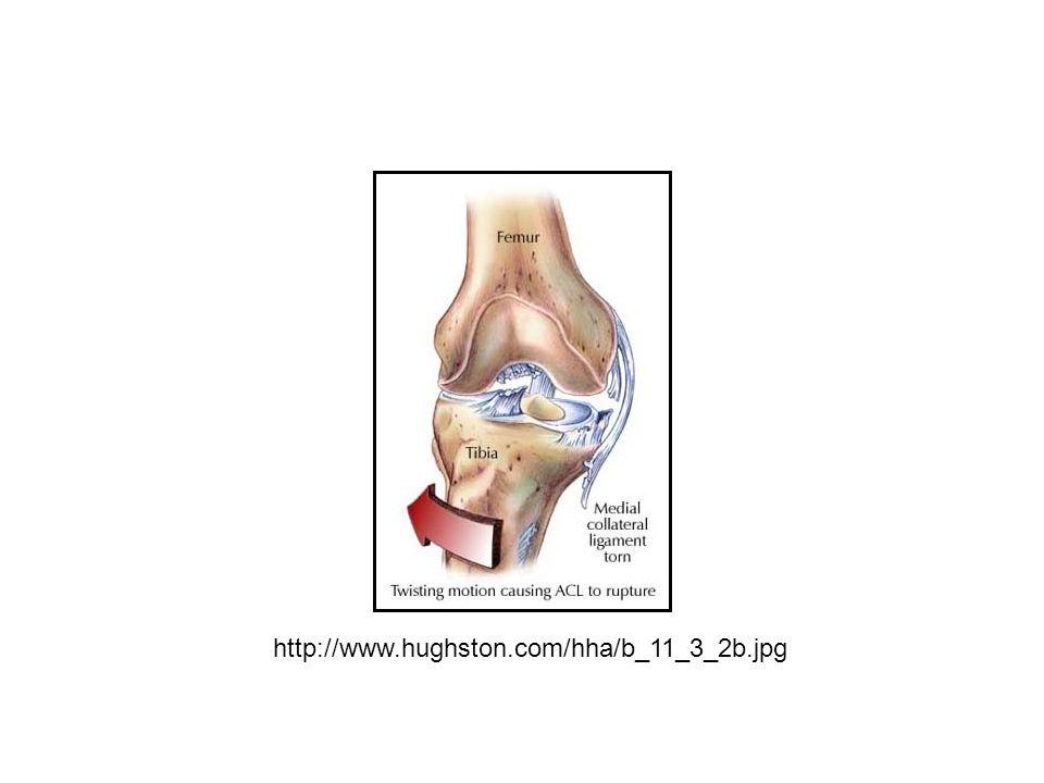 http://www.hughston.com/hha/b_11_3_2b.jpg