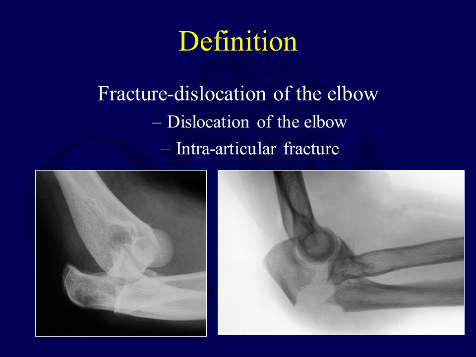 Definition Fracture-dislocation of the elbow –Dislocation of the elbow –Intra-articular fracture