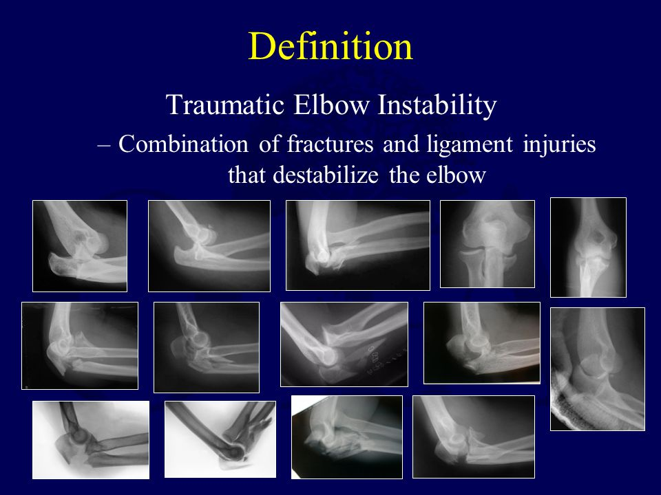 Definition Traumatic Elbow Instability –Combination of fractures and ligament injuries that destabilize the elbow