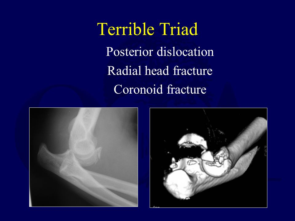 Terrible Triad Posterior dislocation Radial head fracture Coronoid fracture
