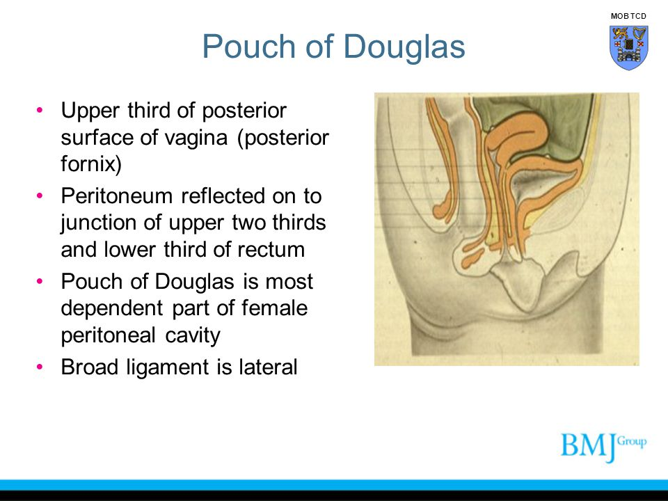 Pouch of Douglas Upper third of posterior surface of vagina (posterior fornix) Peritoneum reflected on to junction of upper two thirds and lower third of rectum Pouch of Douglas is most dependent part of female peritoneal cavity Broad ligament is lateral MOB TCD