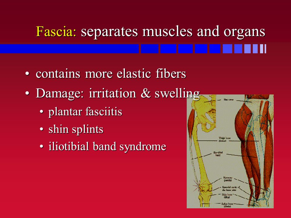 Fascia: separates muscles and organs contains more elastic fiberscontains more elastic fibers Damage: irritation & swellingDamage: irritation & swelli