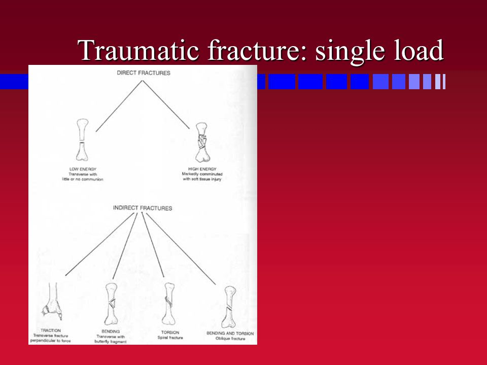 Traumatic fracture: single load