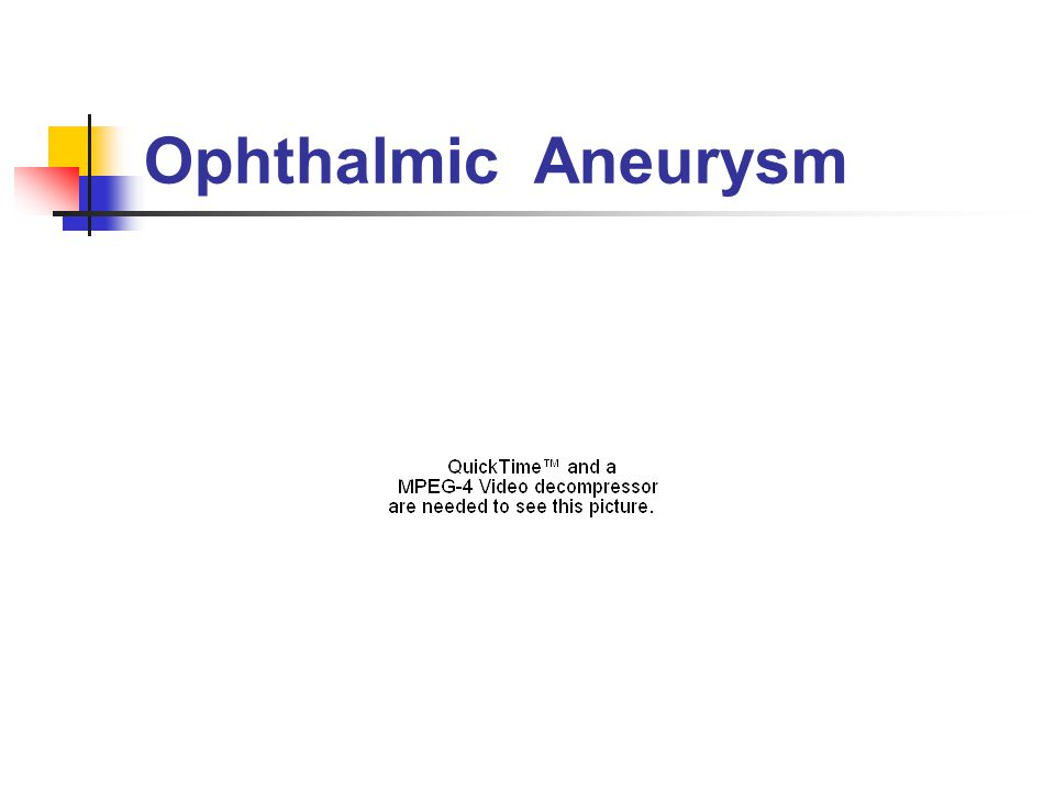 Ophthalmic Aneurysm