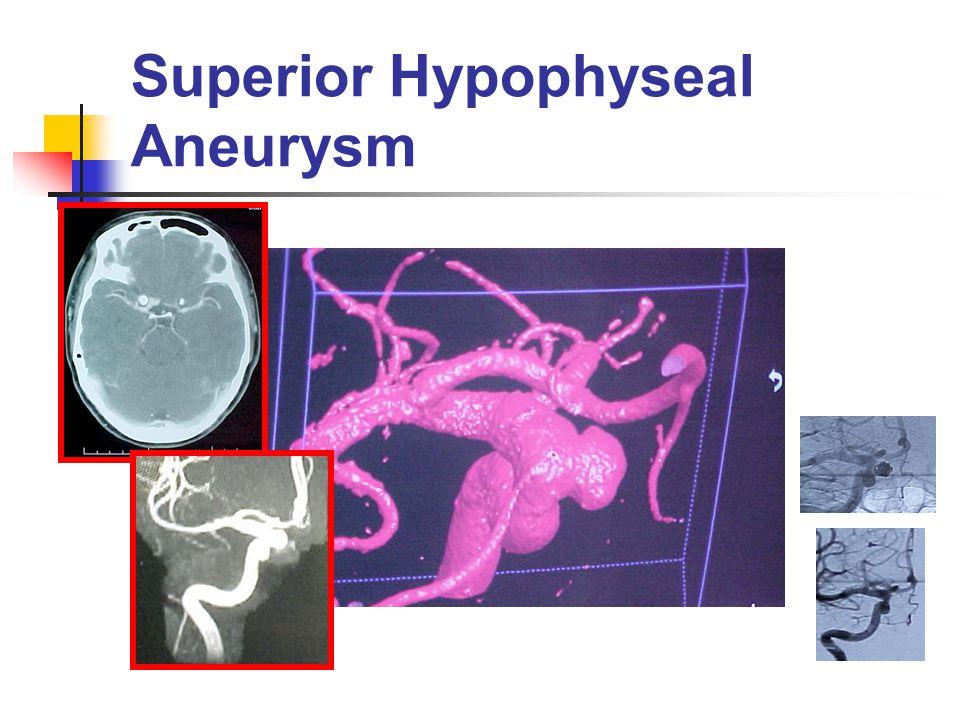 Superior Hypophyseal Aneurysm