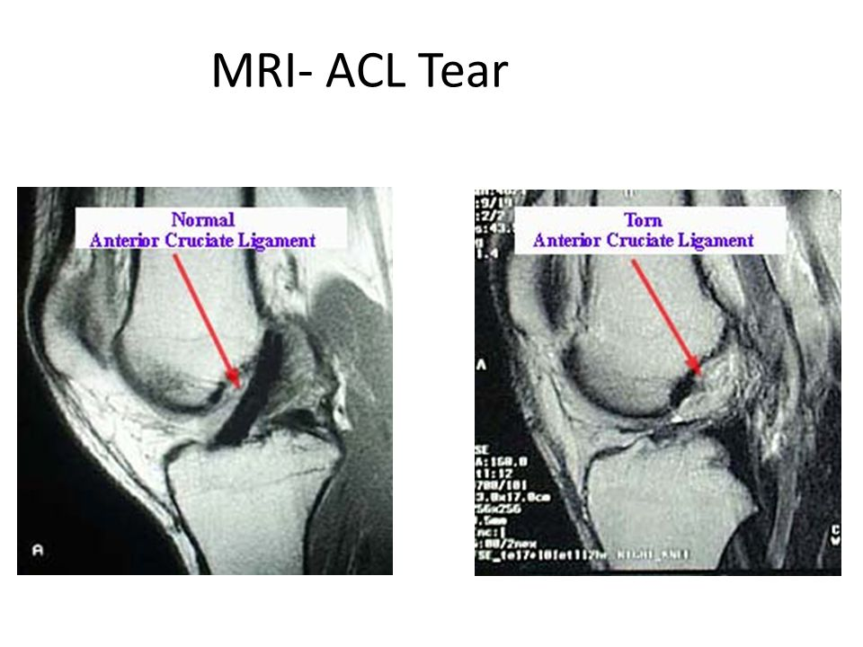MRI- ACL Tear