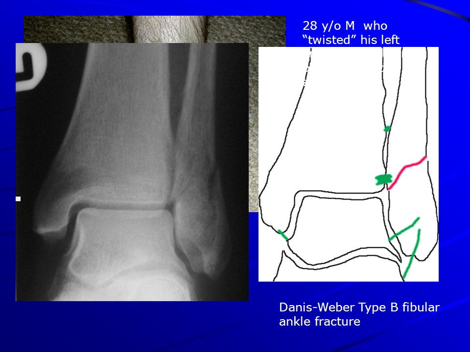 28 y/o M who twisted his left ankle while playing basketball 1 day ago Danis-Weber Type B fibular ankle fracture