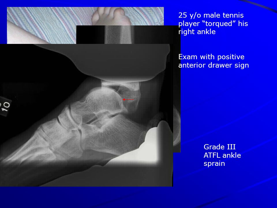 Grade III ATFL ankle sprain 25 y/o male tennis player torqued his right ankle Exam with positive anterior drawer sign