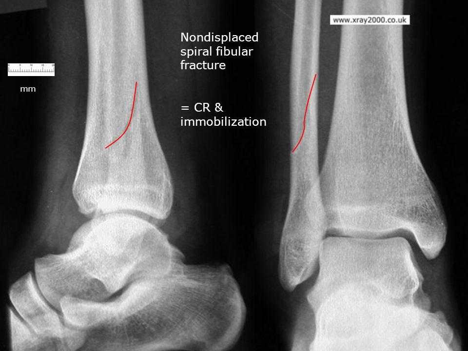 mm Nondisplaced spiral fibular fracture = CR & immobilization