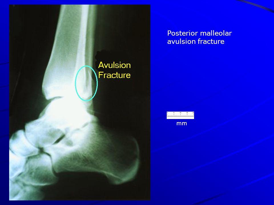 mm Posterior malleolar avulsion fracture