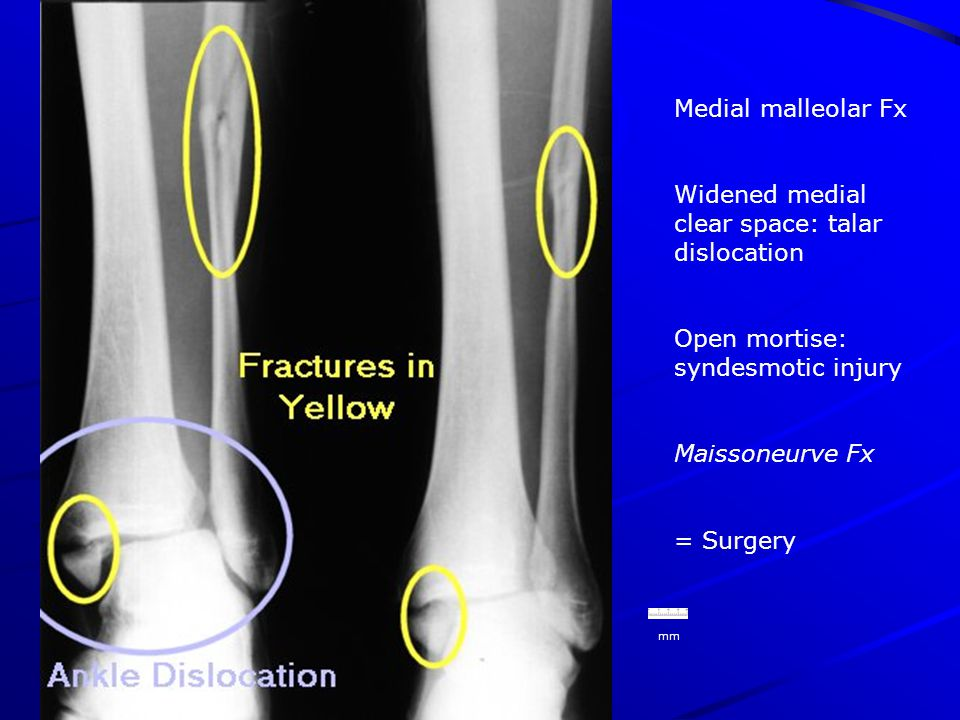 mm Medial malleolar Fx Widened medial clear space: talar dislocation Open mortise: syndesmotic injury Maissoneurve Fx = Surgery