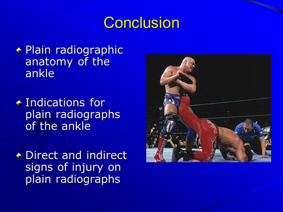 Conclusion Plain radiographic anatomy of the ankle Indications for plain radiographs of the ankle Direct and indirect signs of injury on plain radiographs
