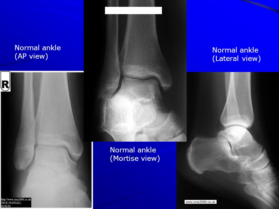 Normal ankle (AP view) Normal ankle (Mortise view) Normal ankle (Lateral view)