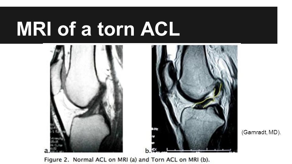 MRI of a torn ACL (Gamradt, MD).