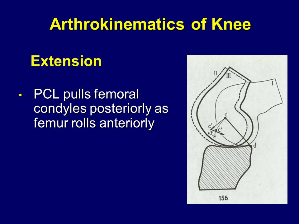 Arthrokinematics of Knee PCL pulls femoral condyles posteriorly as femur rolls anteriorly PCL pulls femoral condyles posteriorly as femur rolls anteriorly Extension