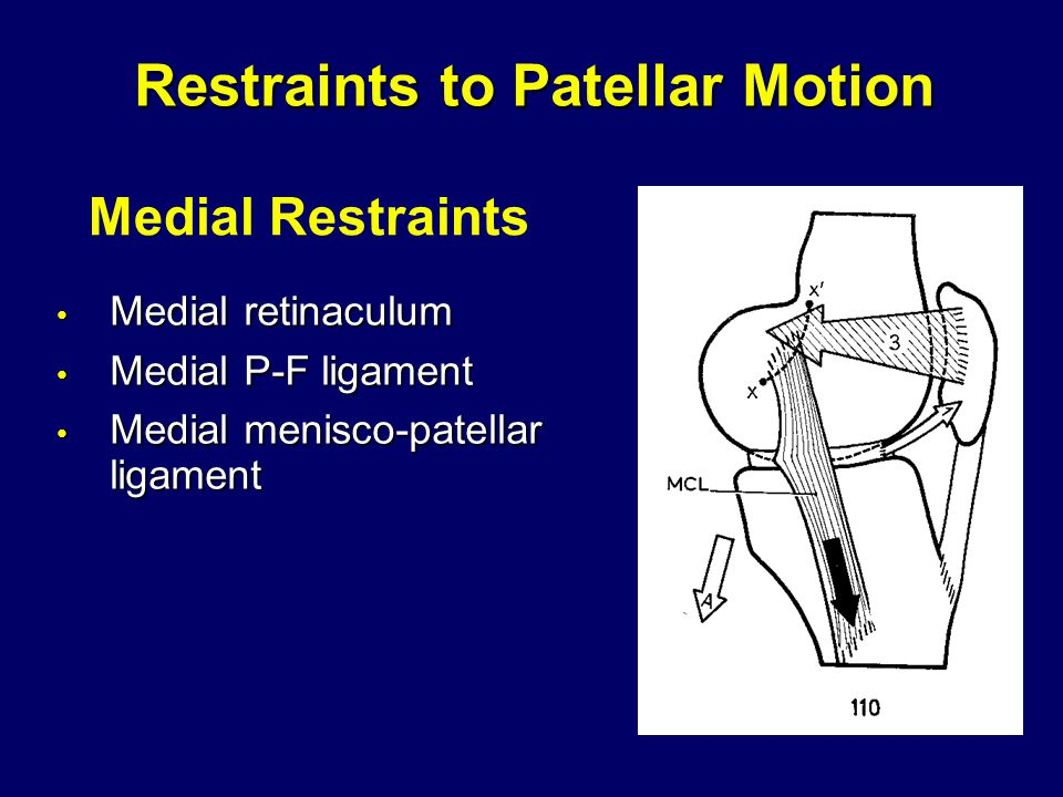 Restraints to Patellar Motion Medial retinaculum Medial retinaculum Medial P-F ligament Medial P-F ligament Medial menisco-patellar ligament Medial menisco-patellar ligament Medial Restraints