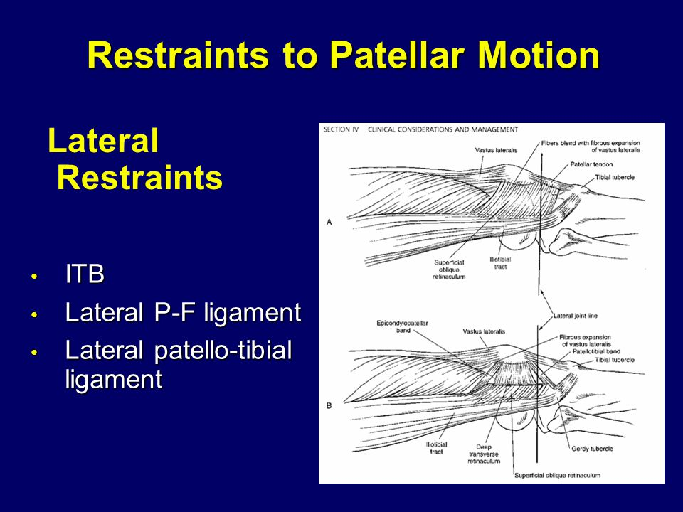 Restraints to Patellar Motion ITB ITB Lateral P-F ligament Lateral P-F ligament Lateral patello-tibial ligament Lateral patello-tibial ligament Lateral Restraints