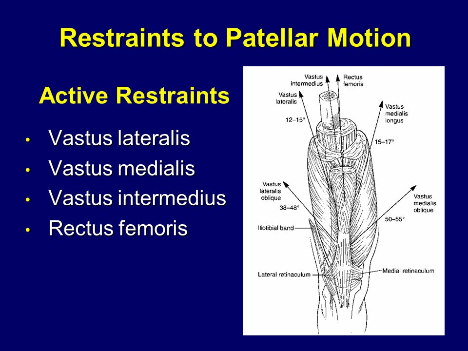 Restraints to Patellar Motion Vastus lateralis Vastus lateralis Vastus medialis Vastus medialis Vastus intermedius Vastus intermedius Rectus femoris Rectus femoris Active Restraints