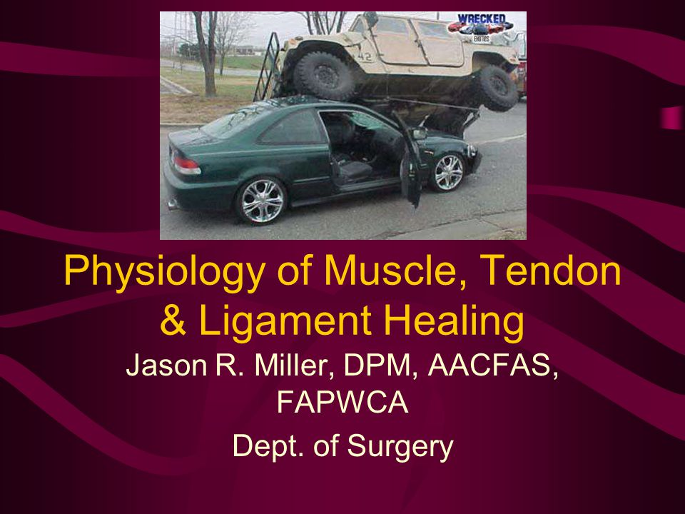 Methods of Tendon Repair Bunnell end to end: Strong, but restricts tissue.