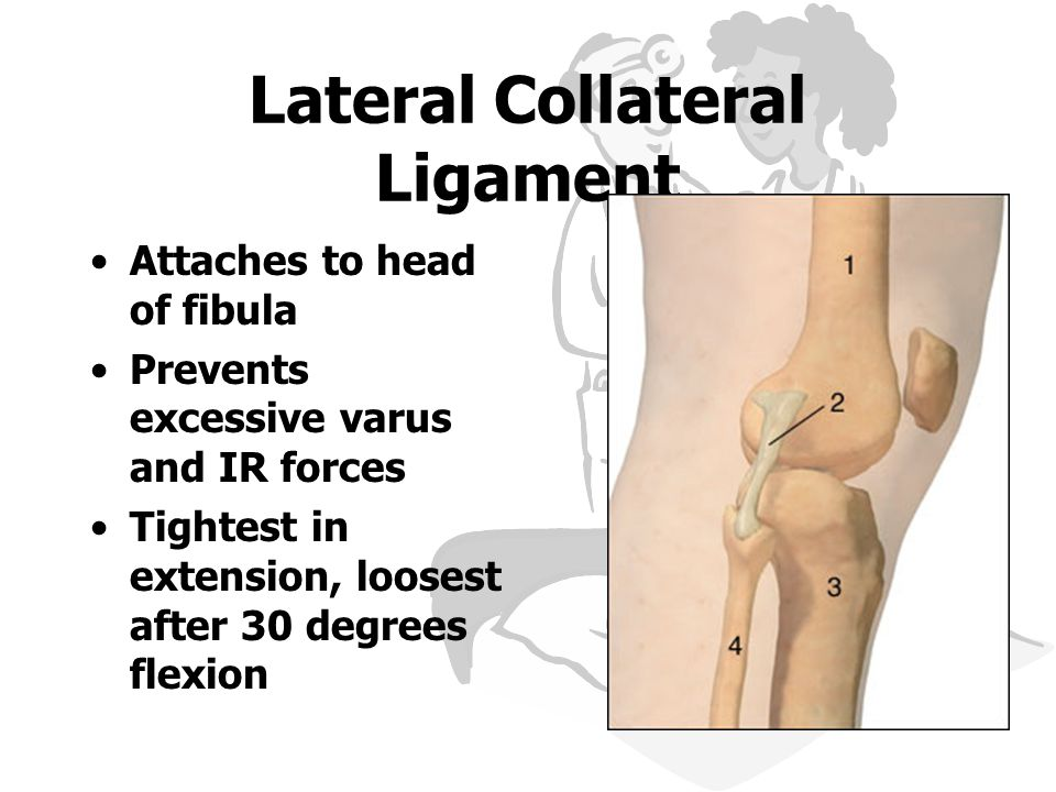 Lateral Collateral Ligament Attaches to head of fibula Prevents excessive varus and IR forces Tightest in extension, loosest after 30 degrees flexion