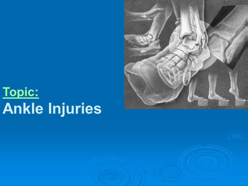Content: Functional Anatomy; Acute Ankle Injuries; Ankle Examination; Lateral Ligament Injuries (Ankle Sprain); Medial Ligament Injuries; Pott s Fracture; Persistent Ankle pain; Some X-ray of Ankle Injuries;