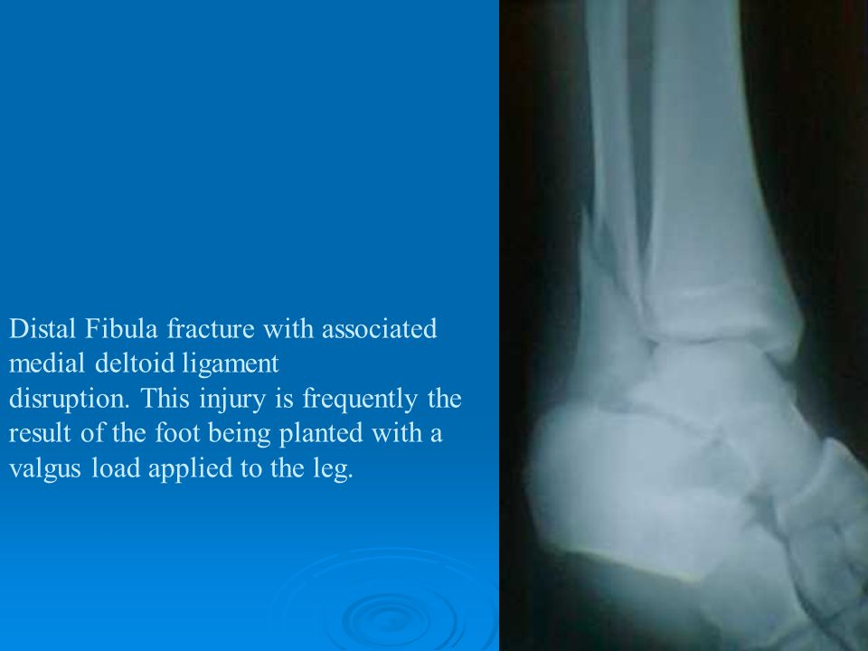 Distal Fibula fracture with associated medial deltoid ligament disruption. This injury is frequently the result of the foot being planted with a valgu