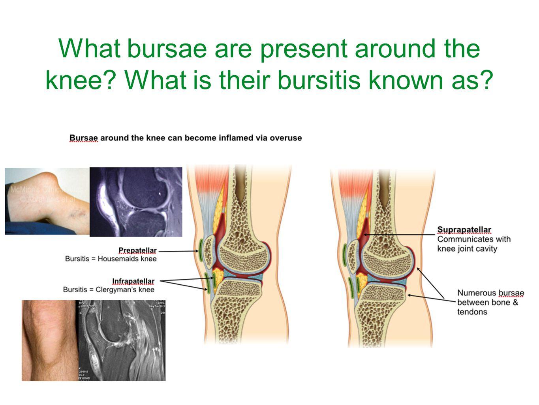 What bursae are present around the knee? What is their bursitis known as?