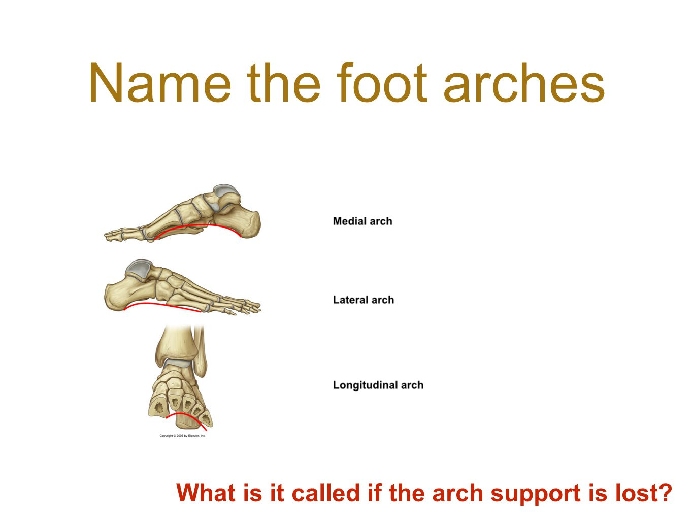 Name the foot arches What is it called if the arch support is lost?