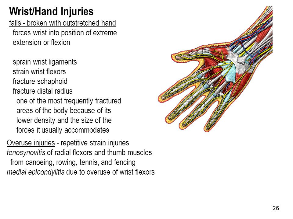 26 Wrist/Hand Injuries falls - broken with outstretched hand forces wrist into position of extreme extension or flexion sprain wrist ligaments strain