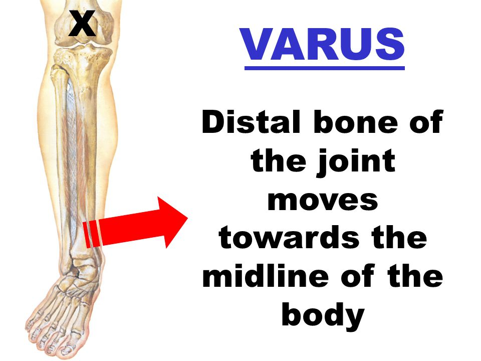 X VARUS Distal bone of the joint moves towards the midline of the body