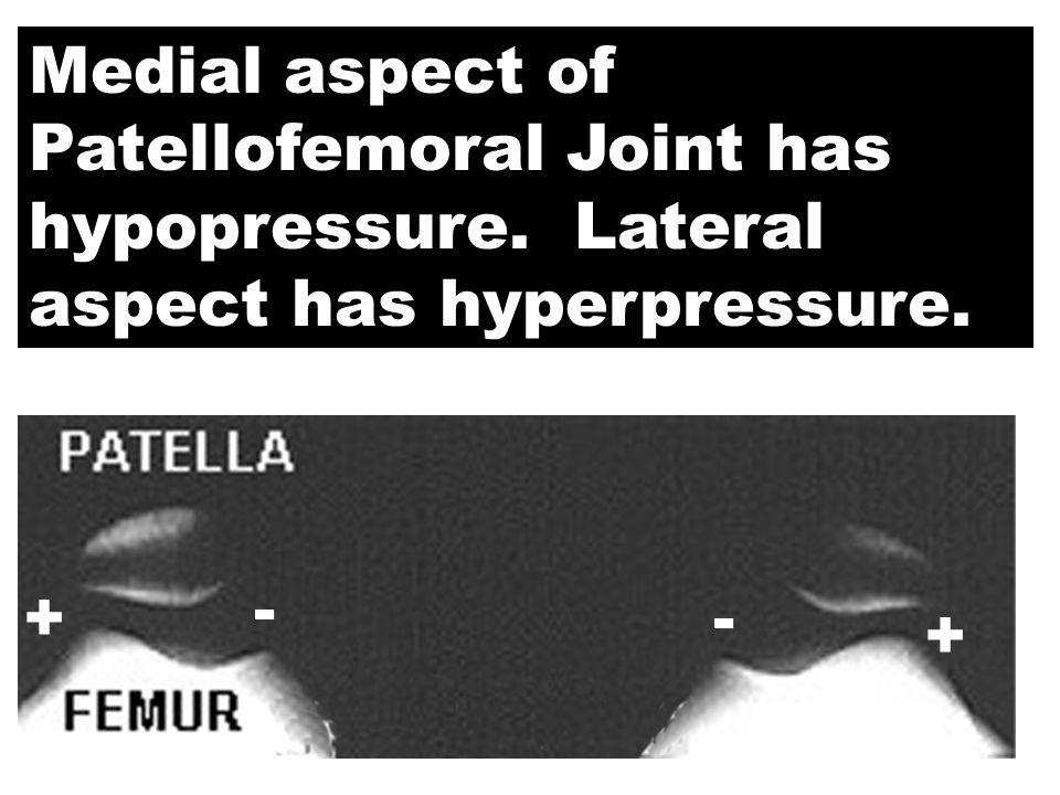 Medial aspect of Patellofemoral Joint has hypopressure. Lateral aspect has hyperpressure. + - - +