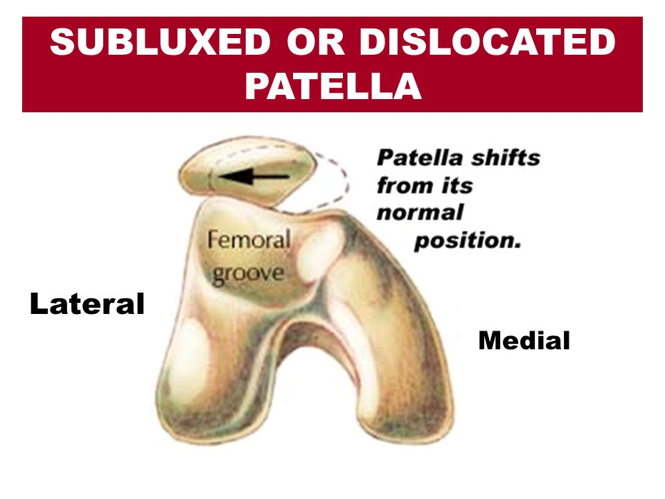 Lateral Medial SUBLUXED OR DISLOCATED PATELLA